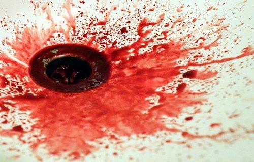 Blood splatter around an old drain.